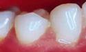 牙周炎口腔杀手,牙周炎偏方