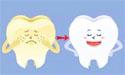 牙齿美白:了解牙齿美白与牙齿清洁的区别
