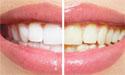 冷光美白牙齿痛吗?怎样美白牙齿?