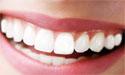 牙齿美白矫正