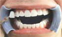 牙齿美白用什么?如何快速美白牙齿?