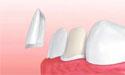 牙齿贴面美白牙齿效果好吗