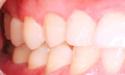 牙周炎是什么?牙周炎的危害?