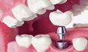 牙齿修复优势