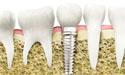 牙齿种植简介