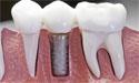 种植牙齿费用