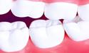 牙齿修复材料