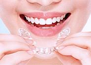 隐形牙齿矫正的费用是多少
