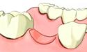 牙齿缺失如何修复?