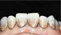 日常牙齿美白方法有哪些?导致牙齿发黄的原因是什么
