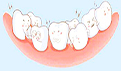 牙周炎洗牙的利与弊 牙周炎的症状
