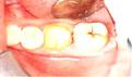 牙髓炎怎么治疗?日常如何预防牙髓炎