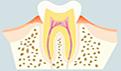 牙周炎不洗牙会怎么样?患上牙周炎后容易引发的并发症