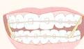 牙齿纠正后遗症有哪些?对牙齿造成哪些伤害