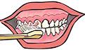 牙龈出血是什么原因?治疗牙龈出血方法