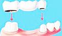 牙齿修复方法有哪些?