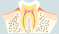 牙龈萎缩牙齿松动怎么办?牙龈萎缩的原因