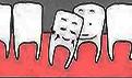 牙齿冷光美白的特点有哪些?操作不当会有哪些坏处