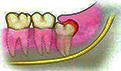 牙齿缺损修复方法 为什么会这样