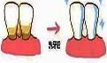 牙齿畸形怎么办?为什么会这样