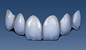 怎么样选择补牙材料?补牙步骤