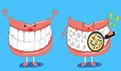 牙齿表面出现牙洞怎么办?补牙后要注意些什么