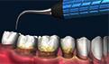 牙齿上有缺口怎么办?5种方法可帮忙