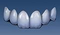 活动假牙和固定假牙哪个比较好?固定假牙注意事项