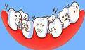 恒牙长掉了怎么办?怎么修复