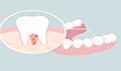 牙有个大窟窿疼怎么办?以下方法可帮忙