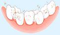 牙缝变大怎么修复?5种方法可帮忙