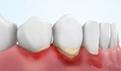 牙根外露怎么治疗?牙根外露是楔形缺损吗