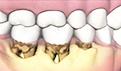 牙齿小而稀疏能补牙吗?牙齿稀疏怎么矫正
